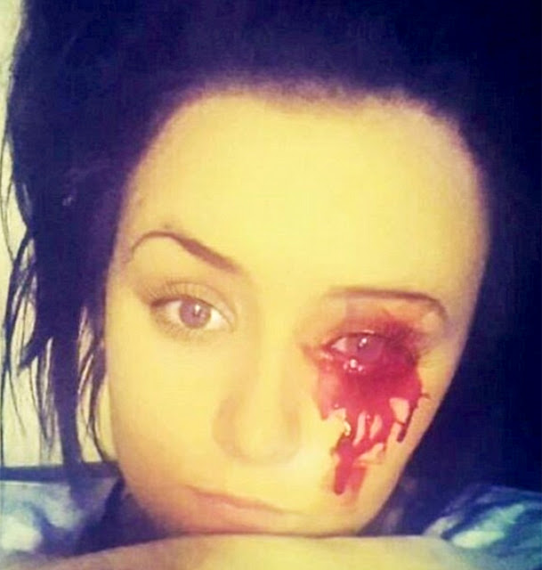 Pretty Teenage Girl Has A Condition That Causes Blood To Ooze Out Of Her Eyes,Ears and Fingernails (Graphic Photos)