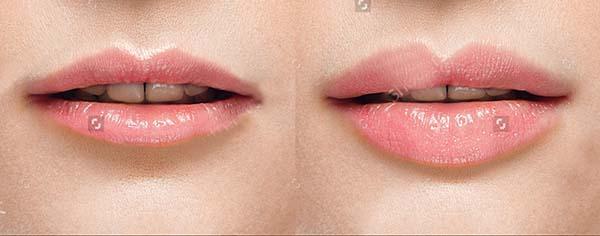 Phun môi không sưng không đau