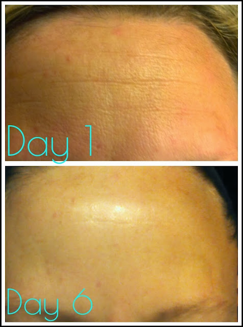 "Unedited photo of REAL RESULTS from using NeriumAD for just 6 days. This is like ""botox in a bottle!"""