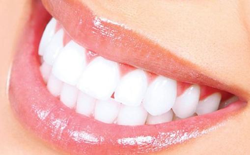 Cara Mengobati Sakit Gigi Secara Alami 920fe2e6c7