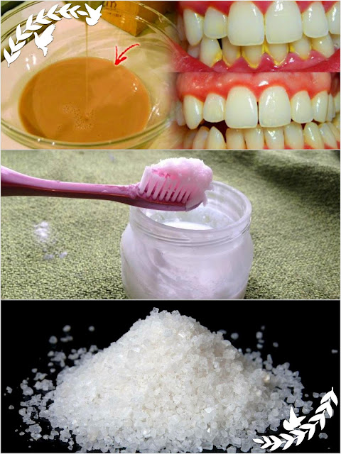 Mouthwash Removes Plaque From Teeth In 10 Minute