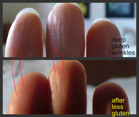 Raw Food Detox Journey: Wrinkly Fingers Show Gluten Intolerance- 1 Year 9 Months 23 Days Detoxification