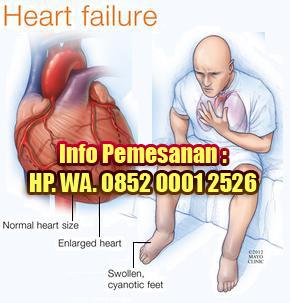 Obat Tradisional Gagal Jantung yang Ampuh dan Aman