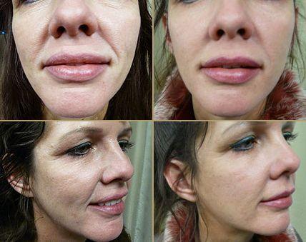 Deep facial line removal