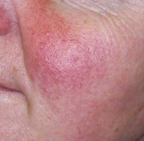 tratamiento para rosacea en el rostro