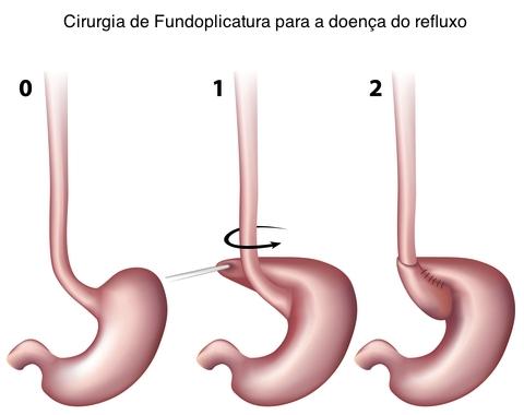remedio caseiro para hernia de hiato por deslizamento