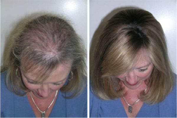 Aceite de ricino para el cabello comprar