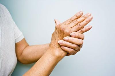 Pengobatan dan Pencegahan Rheumatoid Arthritis Secara Alami