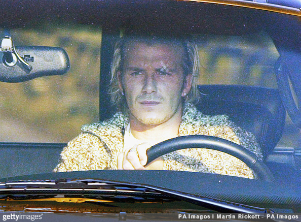 David Beckham arrives at Manchester United's training with a plaster over his left eye