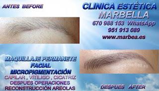 microblading GRANADA Clínica Estética Maquillaje Permanente Facial, Micropigmentación Capilar y microblading cejas en GRANADA y Marbella: Te ofrecemos la mayor calidad de servicios con los mejores expertos en micropigmentación capilar y microblading cejas