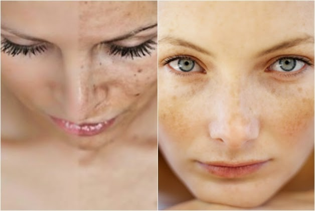is a skin condition in which there is too much pigment in the human skin Hyperpigmentation Treatment