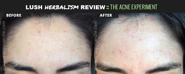 Solid Cleanser Before and After - The Acne Experiment