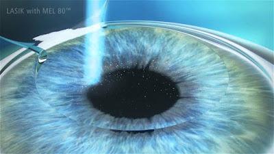 Corregir miopía