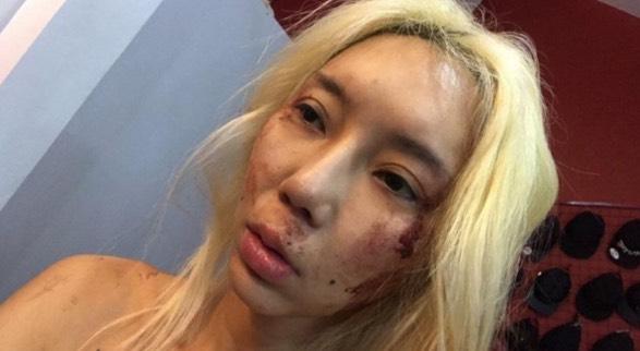 DJ Terkenal Malaysia Tarik Balik Laporan Polis, Tak Nak Kekasih Psycho Kaki Pukul Menganggur