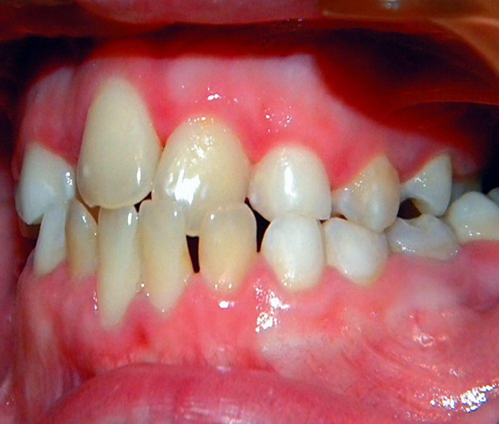 periodoncia-down