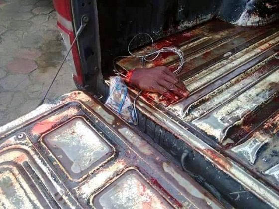 Graphic: His right hand was butchered off for stealing TV set in Akwa Ibom