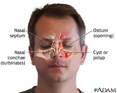 La nariz siempre está obstruida en un lado