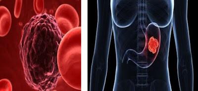 ΚΑΡΚΙΝΟΣ ΣΤΟΜΑΧΟΥ: Το διατροφικό ντουέτο που μειώνει τον κίνδυνο!