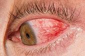Blood shot eyes