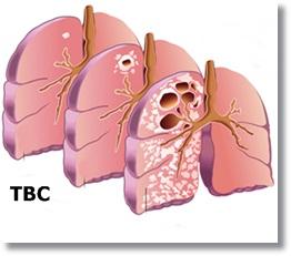 Penularan Penyakit Tbc Dapat Dicegah Dengan Cara Ini