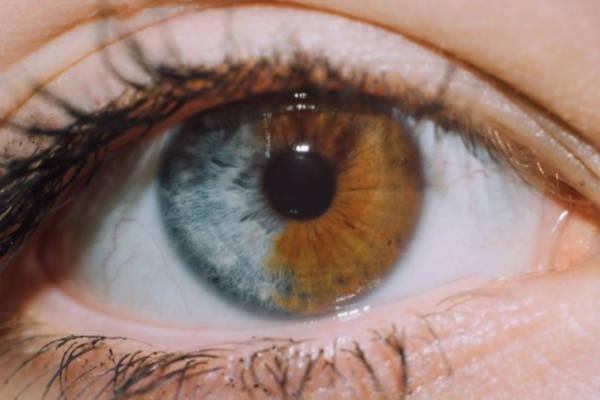 Iris Yang Terbelah Dua