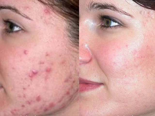 How to Get Rid of Pimples Overnight? (Naturally and Fast)