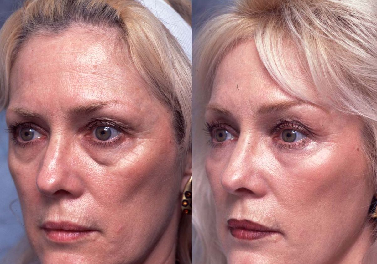 Deal With Eye Bags Right Now Cure Puffy Black Circles Without Plastic Surgery Creams Or Other Expensive Means Underneath We Show You The Way Using Face