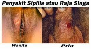 Penyakit Raja Singa Sipilis