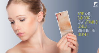 Vitamin-D Good For Acne