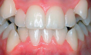 "<Imgsrc =""apiñamiento- dental-inferior.jpg"" width = ""490"" height ""299"" border = ""0"" alt = ""Apiñamiento dental en maxilar superior e inferior."">"