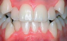 "<Img src =""apiñamiento- dental-inferior.jpg"" width = ""490"" height ""299"" border = ""0"" alt = ""Apiñamiento dental en maxilar superior e inferior."">"