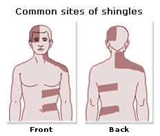There S An Oil For That Shingles Help