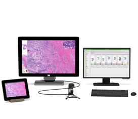 http://www.radiantinsights.com/research/digital-pathology-market-analysis-by-technology-whole-slide-imaging-telepathology-static-dynamic-by-application-disease-diagnosis-academics-drug-discovery-amp-development-and-segment-forecasts-to-2022