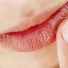 9 Cara Atasi Bibir Kering dan Pecah-pecah