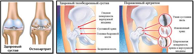 Лечение Коксартроза Тазобедренного Сустава