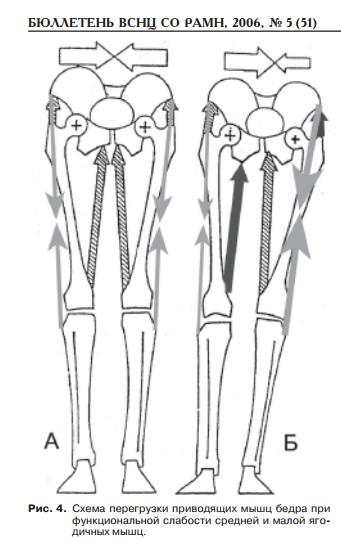 Отводящими мышцами абдукторами плечевого сустава являются солевые грелки при не развитых суставах