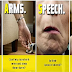 5 Early But Dangerous Signs Of Stroke Before It Actually Happens, This Could Save Lives