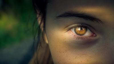 Como disminuir las pecas del rostro (mujeres)