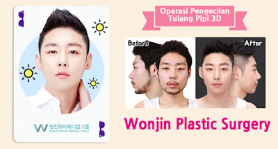 operasi pengecilan tulang pipi 3D wonjin plastic surgery