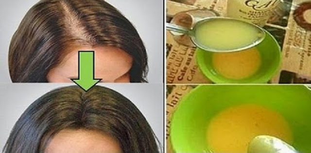 مهما كانت معاناتك مع تساقط الشعر ستكون في الماضي مع تلك الوصفة القوية بمكونات من مطبخك
