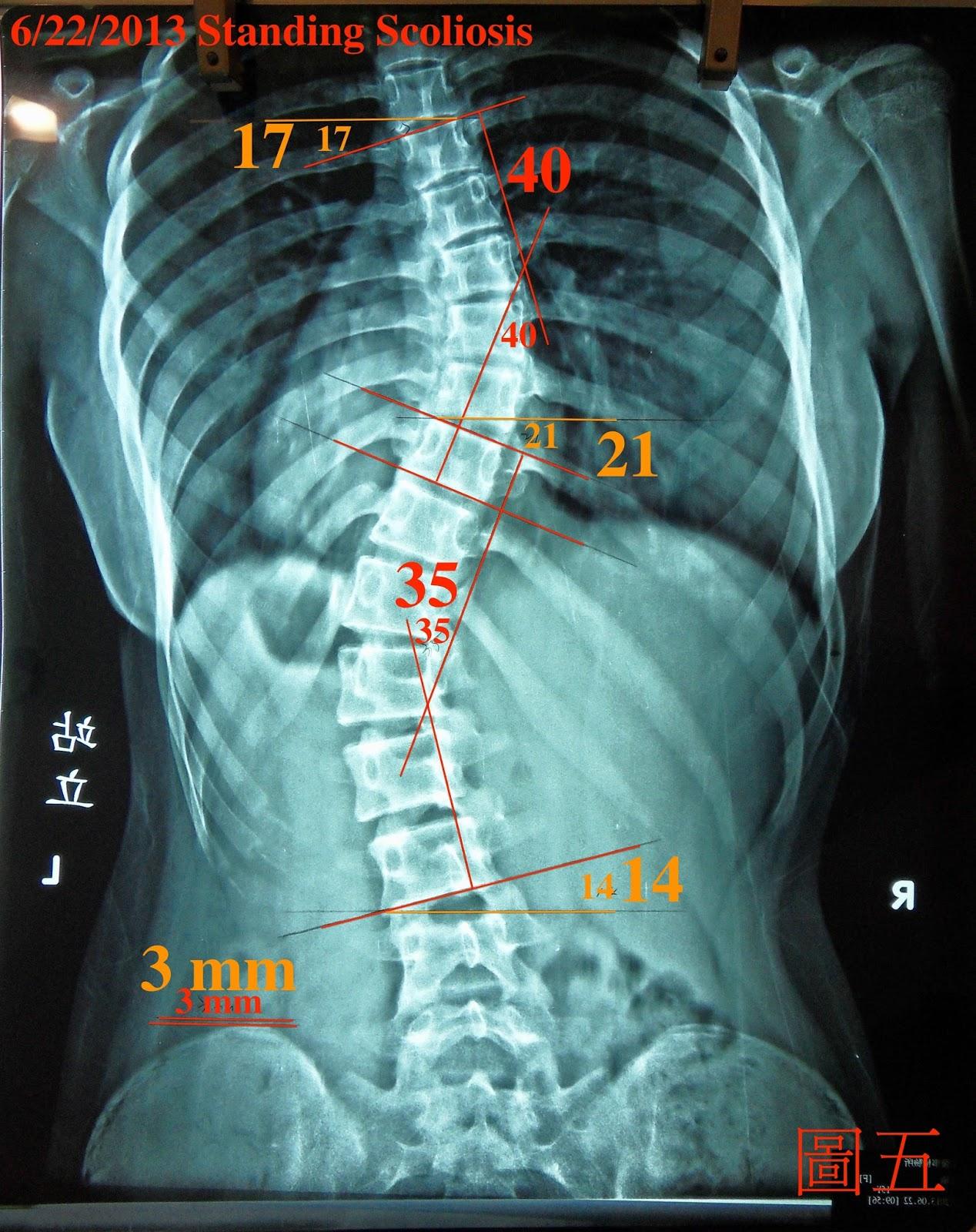 脊椎側彎矯正案例2 - 治療一個月成果:9度+後續追蹤一(5個月16.5度) - 閻曉華脊骨神經醫學網