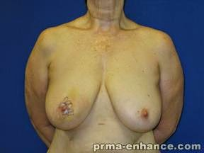 BEFORE bilateral skin-sparing mastectomy and DIEP flap breast reconstruction