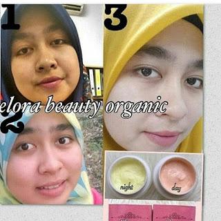 Paket Elora Beauty Organic Asli Cream Pemutih Para Artis