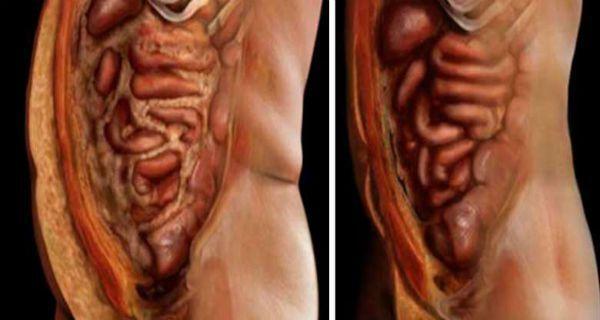 Αυτά τα 2 υλικά θα σε βοηθήσουν να αποβάλλεις το λίπος