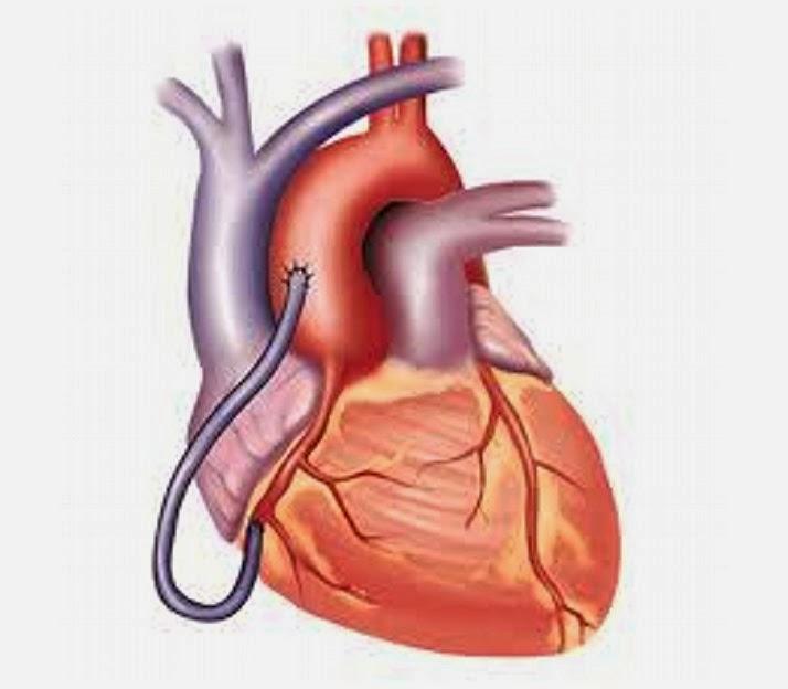5 Resep Mudah Dan Sederhana Guna Menjaga Kesehatan Jantung
