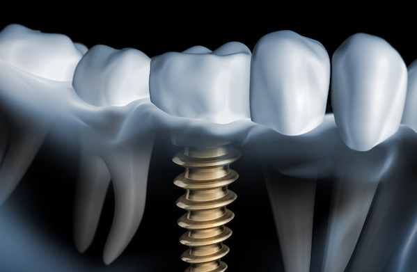 Dental Implants | PintFeed
