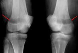 nime dedicated medical pg institute x ray features of leukemiaaltered medullary trabeculation, sub epiphyseal bone resorption