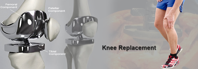 Best knee replacement surgery in India