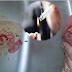 [4 Gambar] Payudara Bengkak Dan Bernanah Akibat Miliki Suami Perokok Tegar