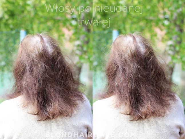 wypadanie włosów po trwałej ondulacji